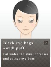 Black eye bags ? with puff